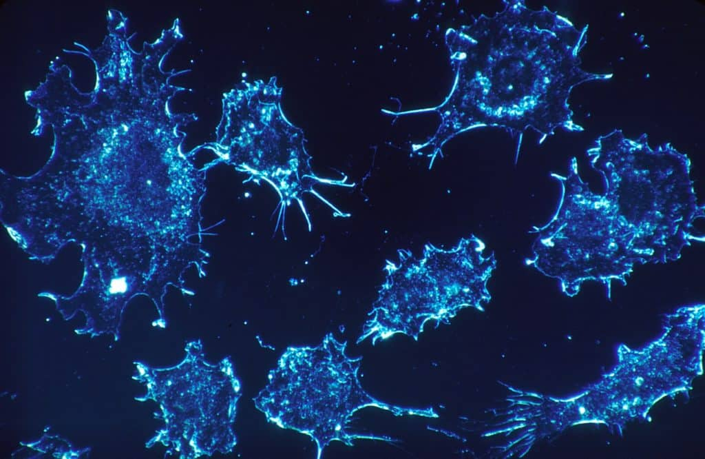 Image of an electron microscopic rendering of cancerous cells